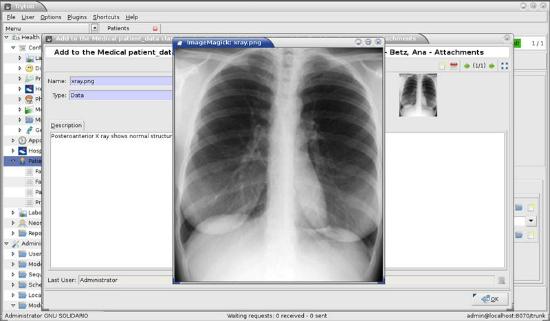 Captura de pantalla de la aplicación GNU Health